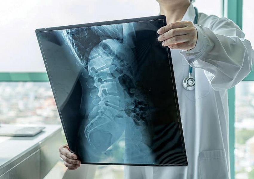 Atrofia muscular espinal: cuando es vital la detección temprana
