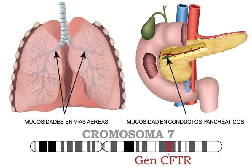 Fibrosis quística: la enfermedad genética que llegó al Congreso